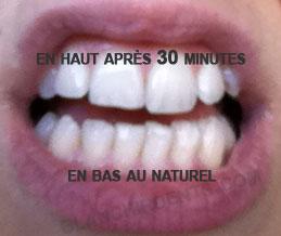 avis blanchiment des dents