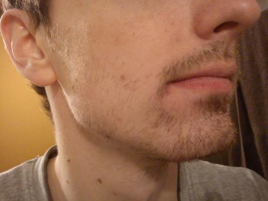 barbe pousse pas partout