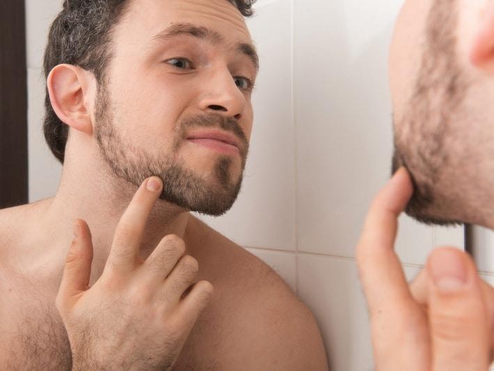 barbe pousse pas