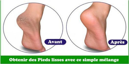 bicarbonate de sodium pour les pieds