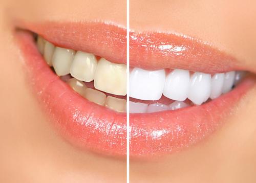 bicarbonate dents