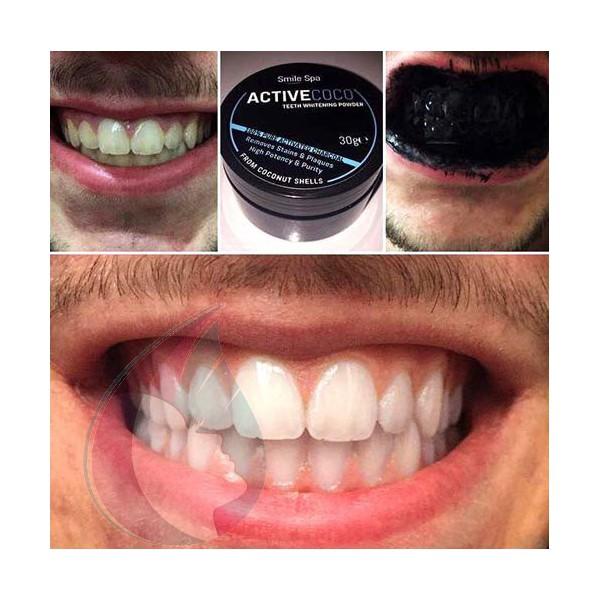 charbon pour blanchir les dents