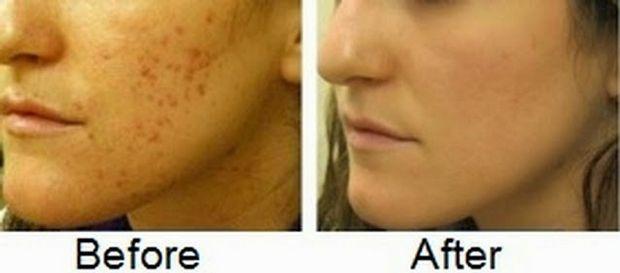 enlever tache acné