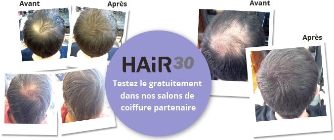 hair 30