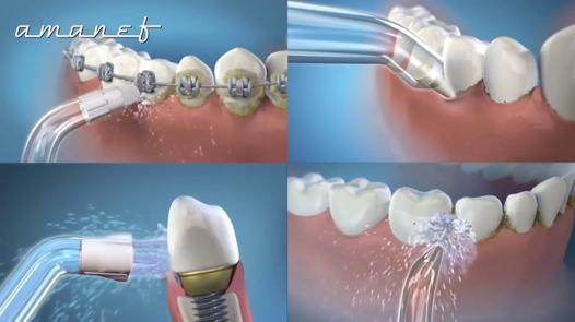 hydropulseur dentaire  dentiste