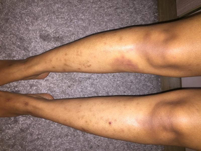 jambes poils incarnés