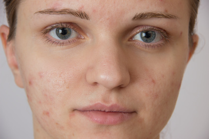 peau acneique