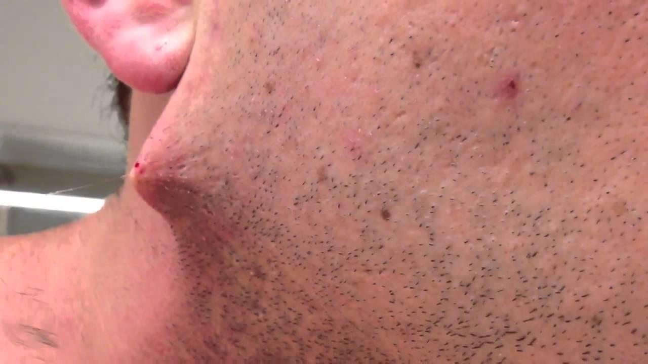 poils sous peau